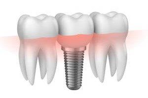 implant zebowy otwock