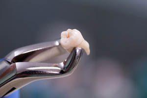 chirurgia stomatologiczna otwock