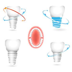 implantoprotetyka otwock