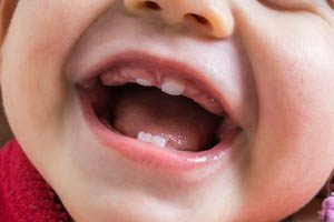 zęby mleczne otwock