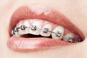 ortodoncja otwock