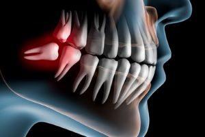 wpływ zębów na bóle głowy
